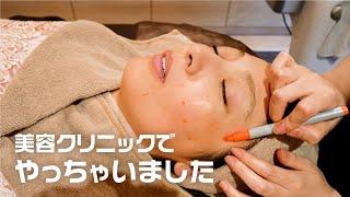 【美容クリニックでやっちゃいます】美人女医がいる美容クリニックで気になるクマとシワを改善してもらいました!