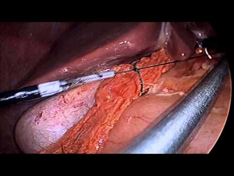 laparoscopic repair of the perforated duodenal ulcer