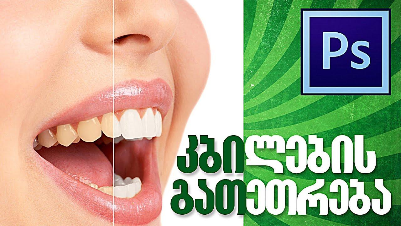 კბილების გათეთრება ფოტოშოპში – Photoshop teeth whitening tutorial