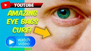 GET RID OF EYE BAGS FAST! EYE BAGS HOME REMEDY & TREATMENT SUBLIMINAL