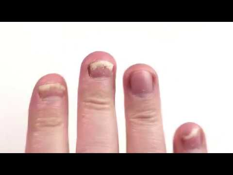 Terbinafine – Treating My Fingernail Fungus (Lamisil Generic Pills) Part. 2