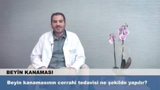 Beyin kanamasının cerrahi tedavisi ne şekilde yapılır?