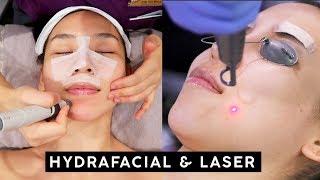 My Skincare Treatments - Hydrafacial & Laser