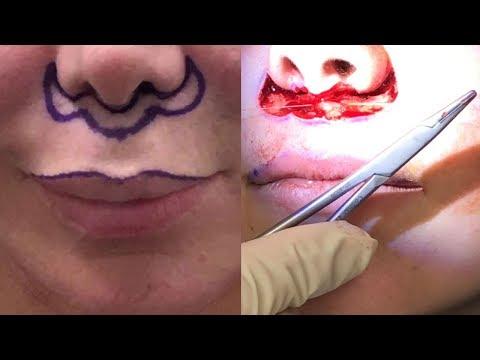 Lip-lift Procedure