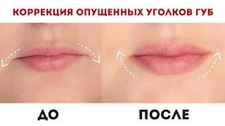 Коррекция опущенных уголков губ / Как приподнять уголки рта? / Диана Суворова