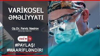 Varikosel emeliyyati Uroloq cerrah Perviz Nasirov MEDPLUS