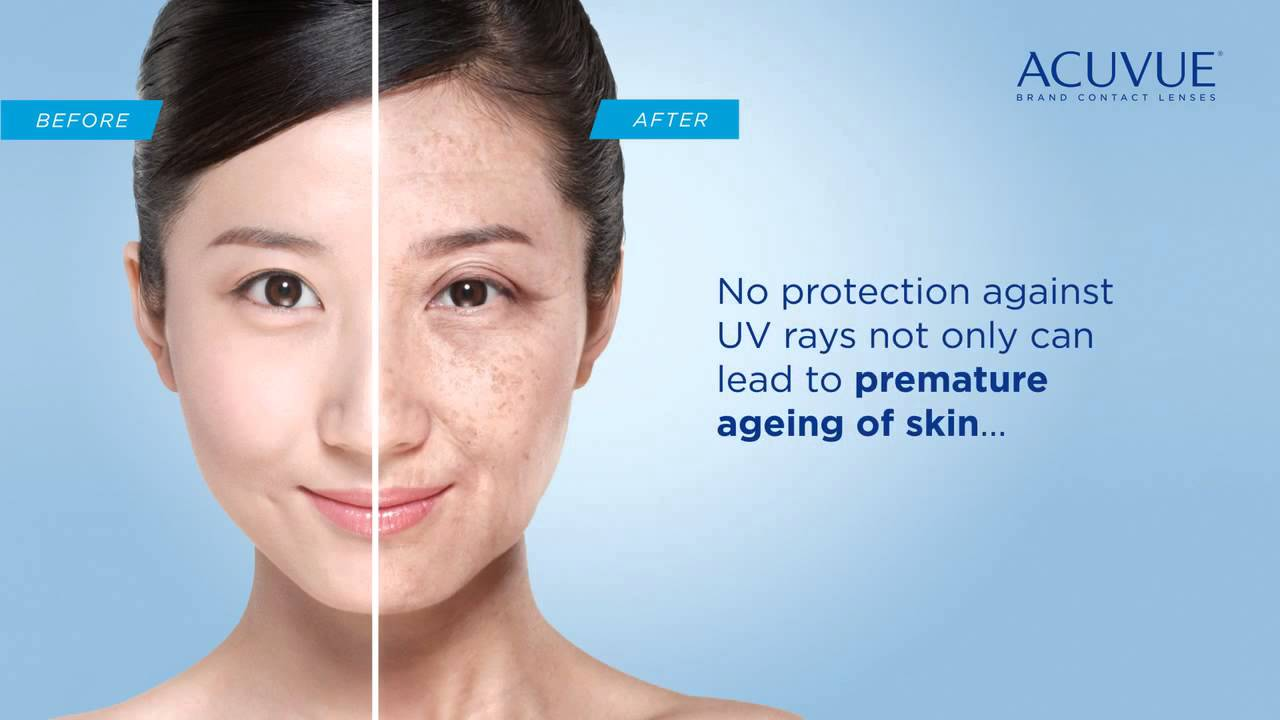 Acuvue 174 Eye Care Tips Effects Of Long Term Uv Exposure