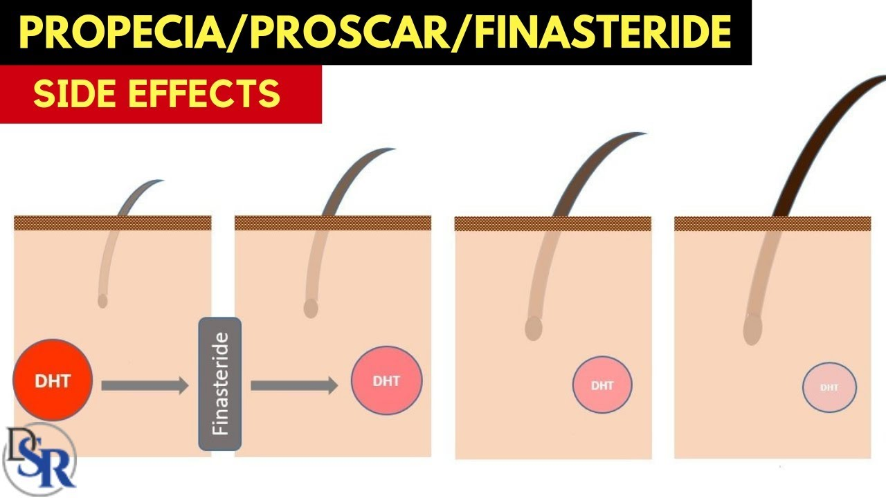 Propecia/Proscar (finasteride) Side Effects - The Secret ...