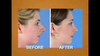Nose Job Before and After (Rhinoplasty)