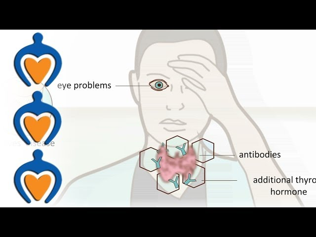 Thyroid Problems Most Common Thyroid Problems Symptoms And
