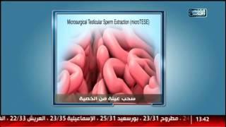 الدكتور | سيدات تحكى عن مشاكلها فى عالم النسا والتوليد مع د .اسماعيل ابو الفتوح