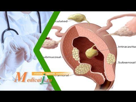 Миома матки ч.1 Причины миомы, симптомы и диагностика - современные данные.