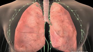 Lung Cancer: How You Can Avoid It