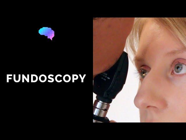 Fundoscopy (Ophthalmoscopy) - OSCE Guide
