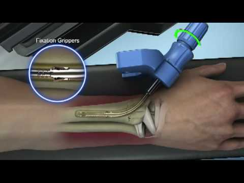 Wrist Fracture Open Reduction And Internal Or Externa