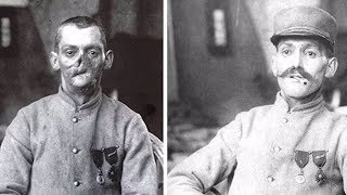 Incredible sculpted masks gave wounded WWI vets a new face