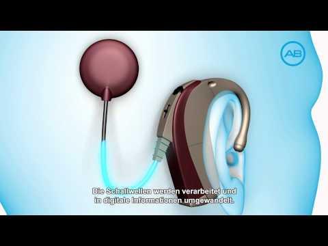 Wie funktioniert ein Cochlea Implantat - Ein Flug durch das Ohr