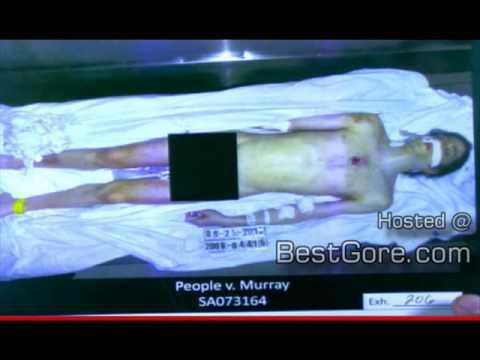 Autopsia de Michael Jackson(Realidades sobre este mundo)