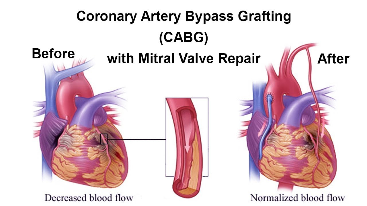 Coronary Artery Bypass Grafting with Mitral Valve Repair by Dr Yugal ...