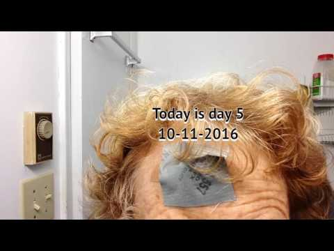 home-remedy-for-basal-cell-carcinoma-video-1-of-3