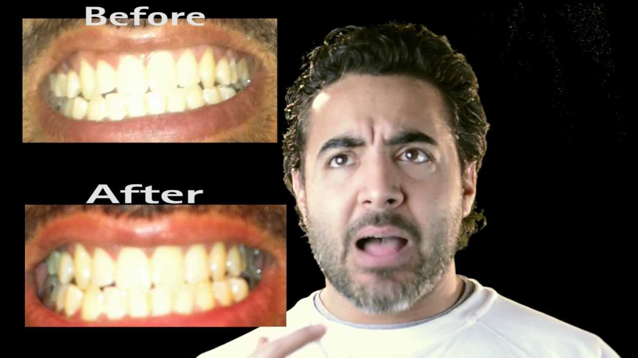 Banana Peel To Whiten Your Teeth Does It Work Review Youtube