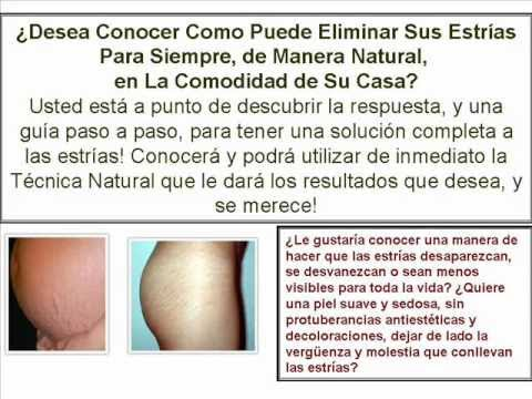 como eliminar las estrias de forma natural - YouTube