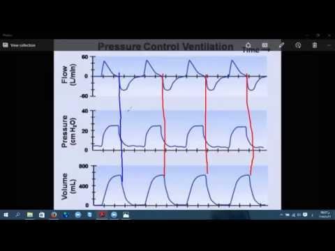 mechanical ventilation principles 2