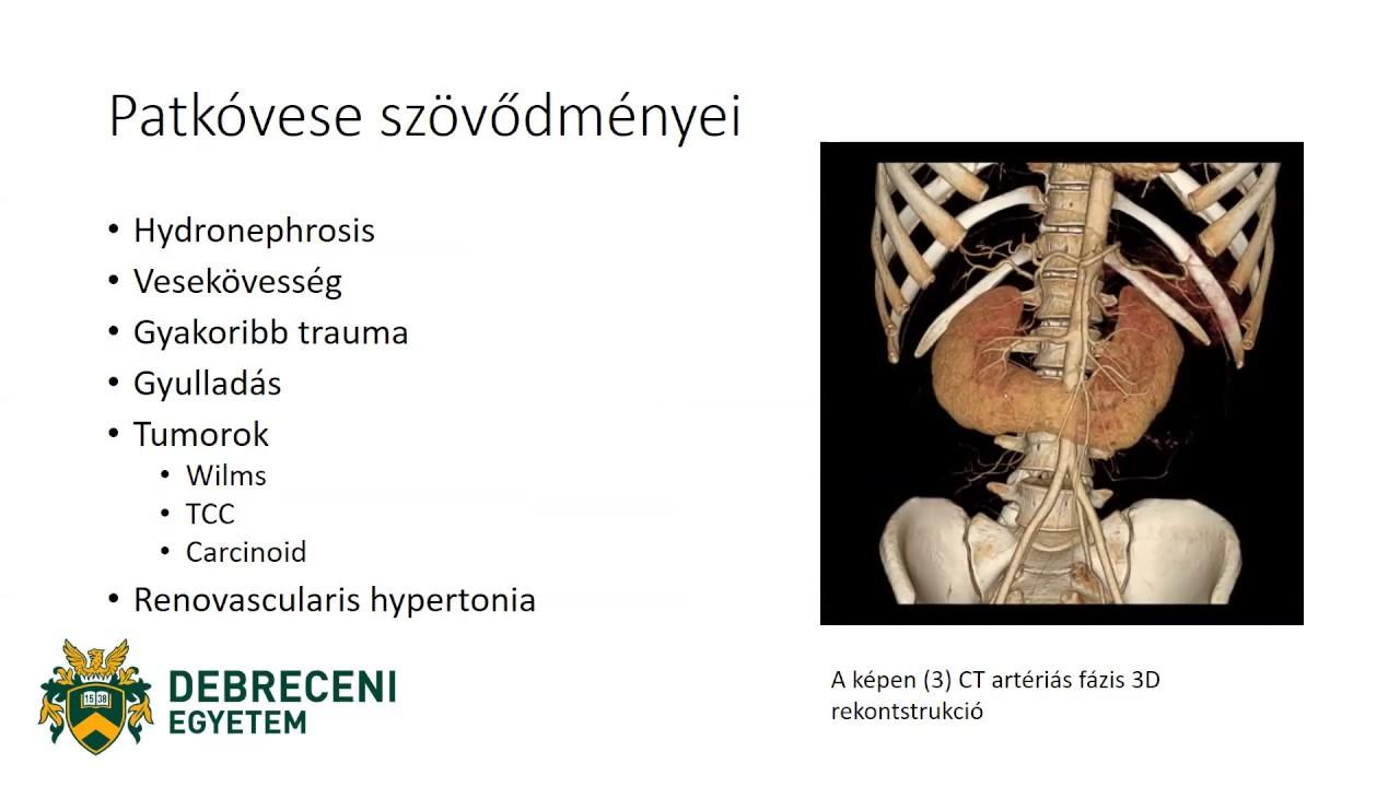 Halláskárosodás hipertónia. Fülzúgás tünetei