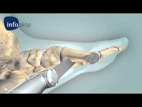 3D medical animation - Osteotomy - Hallux Valgus - designidentity