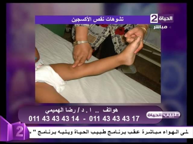 طبيب الحياة بالصور أعراض وتشوهات نقص الأكسجين د رضا الهميمي إستشاري جراحة العظام Youtube