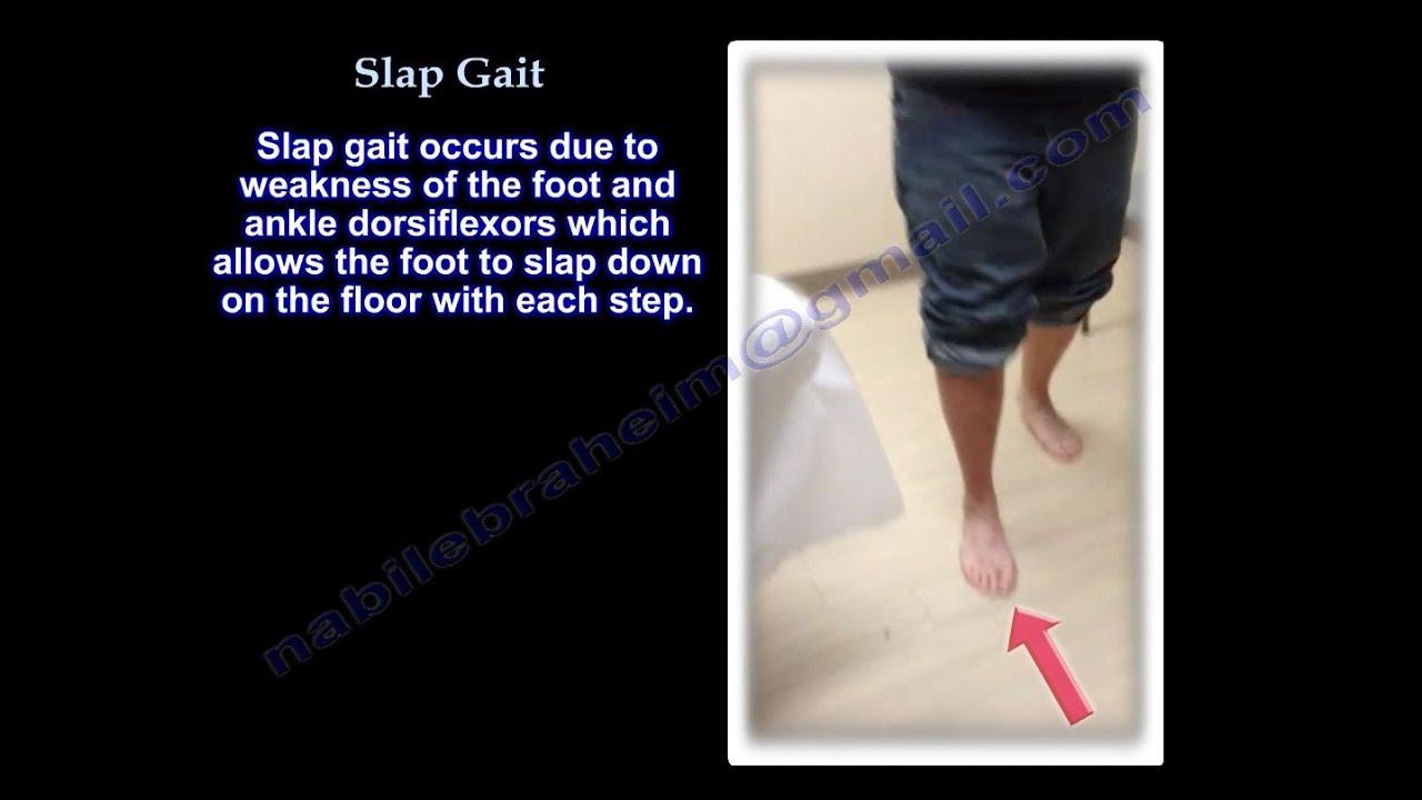 Slap gait , Steppage Gait   Foot Drop - Everything You Need To Know - Dr   Nabil Ebraheim