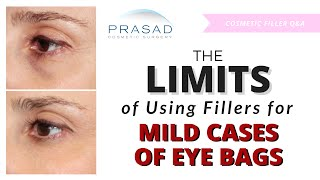 Limits of Fillers Alone in Treating Puffy Eye Bags and Dark Circles Under Eyes