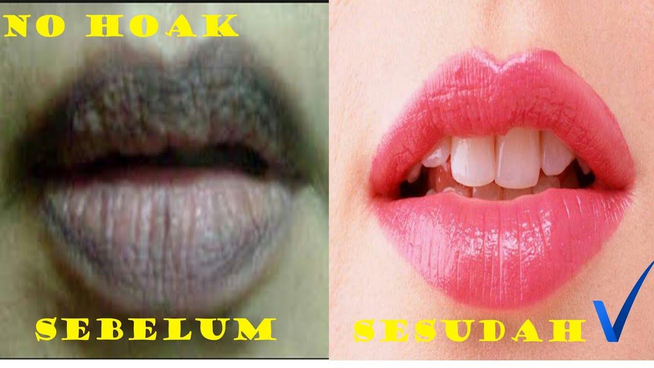 1 Cara Memerahkan Bibir Hitam Menjadi Merah Hasil Permanen Youtube