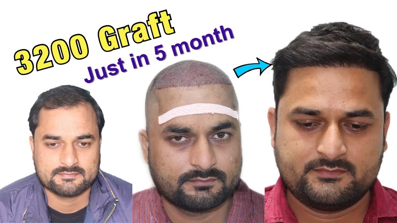 Case study with Awesome Hair Transplant Result | 1 Lakh subscribers ki khusi