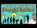 Progeria Syndrome Explained   How it is caused?