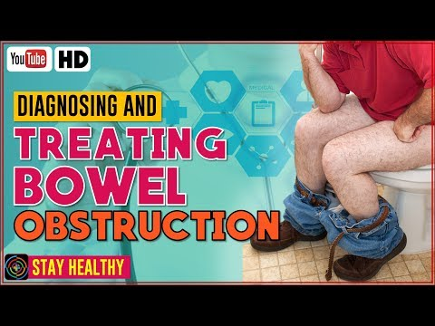 Diagnosing and Treating Bowel Obstruction