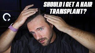Would I Get A Hair Transplant??? (HAIRCUT Q&A)