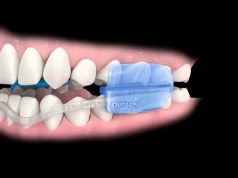 Comfort Fit Dental Guard Instructions Youtube
