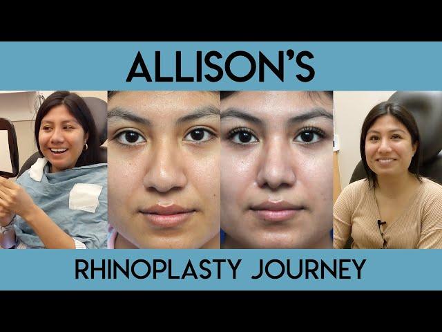 Allison's Rhinoplasty Journey