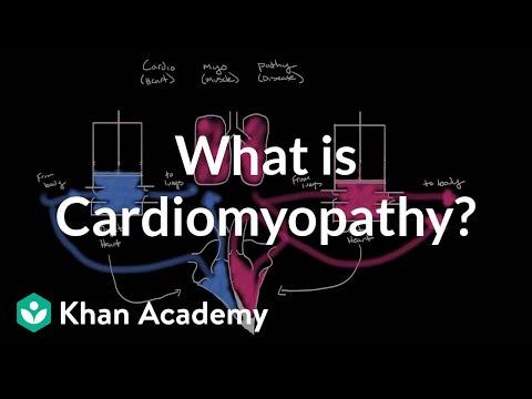 Beliebte Videos – Kardiomyopathie