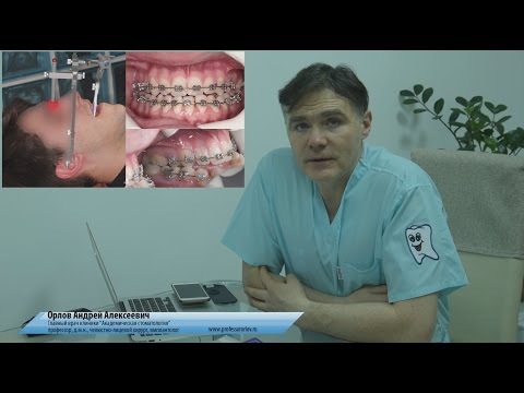 """Исправление прикуса. Клиника """"Академическая стоматология"""""""