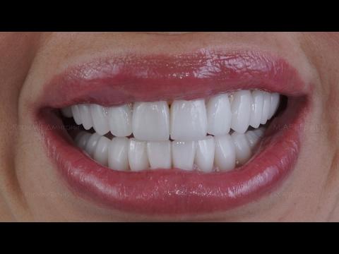 Виниры на зубы. Какие виниры лучше и сколько они стоят в