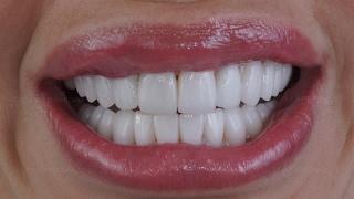 видео Металлические коронки на зубы, с белым напылением