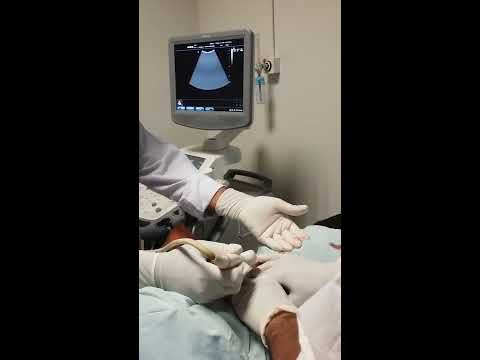 Emergency Ultrasound Guided  Percutaneous Nephrostomy Tube placement