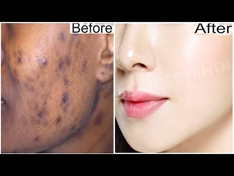 In 3 DAYS -Remove DARK SPOTS Permanently | Remove DARK SPOTS,BLACK SPOTS & ACNE SCARS in just 3 Days