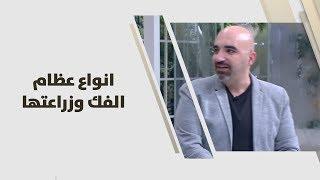 د. خالد عبيدات - انواع عظام الفك وزراعتها