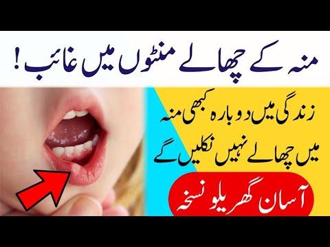 Muh Ke Chaale Ka Desi Ilaj, मुँह के छालों का आसान घरेलू ईलाज, Home Remedy For Mouth Ulcer