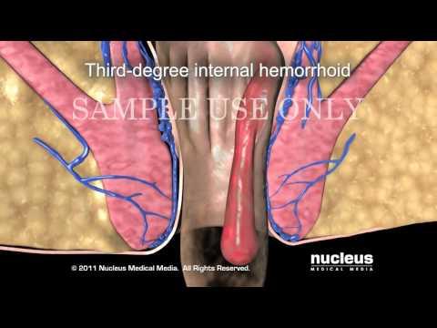 Лечение геморроя без операции в домашних условиях.