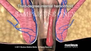 Операция удаления геморроя, геморроидэктомия/Hemorrhoidectomy Hemorrhoid Surgery