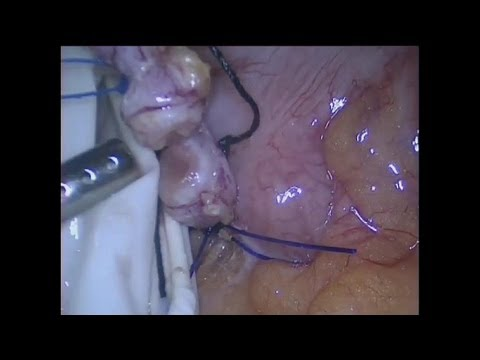 Acute Appendicitis  - Appendectomy with Ultracision
